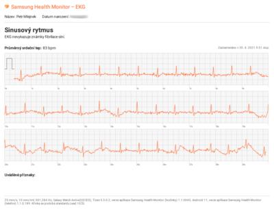 Export elektrokardiogramu (EKG) z hodinek Samsung Galaxy Watch Active2